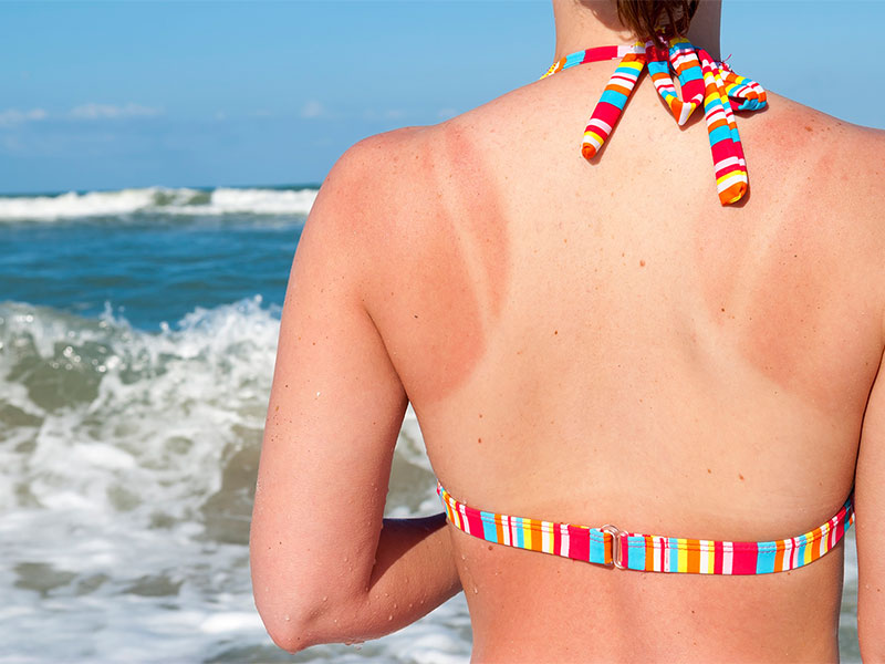 Sunburns During Your Holiday